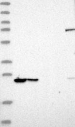 NBP1-89713 - PSMB1