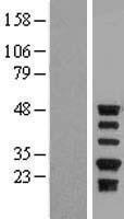 NBL1-15839 - Protein C inhibitor Lysate