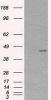 NBP1-47935 - PRKAR1A