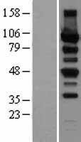 NBL1-14780 - Protein Kinase D2 Lysate