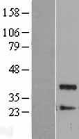 NBL1-14671 - Protein Phosphatase 1 beta Lysate