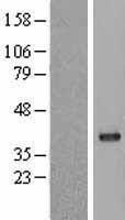 NBL1-14673 - Protein Phosphatase 1C gamma Lysate