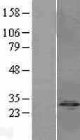 NBL1-14682 - Protein phosphatase 1 inhibitor subunit 2 Lysate