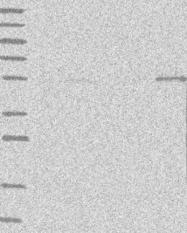 NBP1-88206 - Protein phosphatase 1F / PPM1F