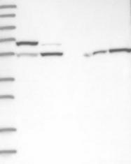 NBP1-88207 - Protein phosphatase 1F / PPM1F