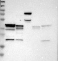 NBP1-87178 - QKI / Protein quaking