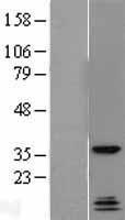 NBL1-15027 - Protein quaking Lysate
