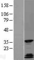 NBL1-15028 - Protein quaking Lysate