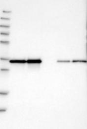 NBP1-87788 - Pyrophosphatase 1 / PPA1