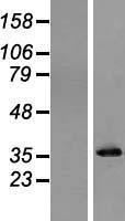 NBL1-14622 - Pyrophosphatase Lysate