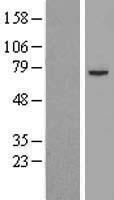 NBL1-09906 - Pyruvate Dehydrogenase E2 Lysate