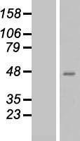 NBL1-15029 - QPCT Lysate