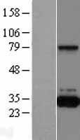 NBL1-15030 - QPRT Lysate