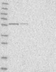 NBP1-87991 - QRSL1
