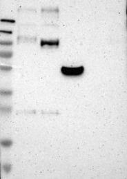 NBP1-84094 - Sulfhydryl oxidase 2 / QSOX2