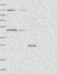 NBP1-83706 - QTRTD1