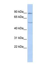 NBP1-59285 - Cadherin-4