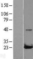NBL1-15048 - RAB22A Lysate