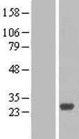 NBL1-15055 - RAB27B Lysate