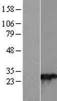 NBL1-15056 - RAB28 Lysate