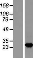 NBL1-15058 - RAB2B Lysate