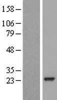 NBL1-15059 - RAB30 Lysate