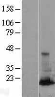 NBL1-15060 - RAB31 Lysate