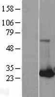 NBL1-15061 - RAB32 Lysate