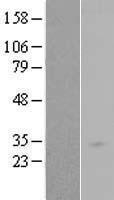NBL1-15063 - RAB34 Lysate