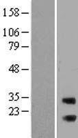 NBL1-15075 - RAB3IP Lysate