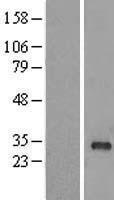 NBL1-15076 - RAB40B Lysate