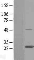 NBL1-15083 - RAB6A Lysate