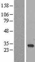 NBL1-15085 - RAB6B Lysate