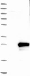 NBP1-87173 - RAB7L1