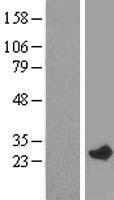 NBL1-15089 - RAB7L1 Lysate