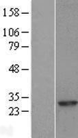 NBL1-15090 - RAB8A Lysate