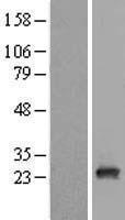NBL1-15093 - RAB9B Lysate