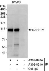 NBP1-47285 - RABEP1
