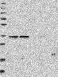 NBP1-85962 - RABGGTB / GGTB