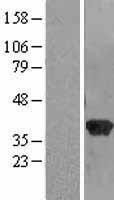 NBL1-15098 - RABGGTB Lysate