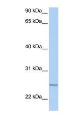 NBP1-58928 - RABL4 / IFT27
