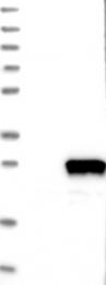 NBP1-87170 - RABL4 / IFT27