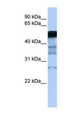 NBP1-54908 - RAD18 / RNF73