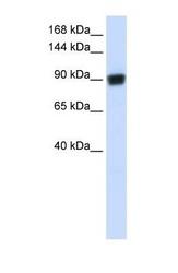 NBP1-58233 - RAD54B