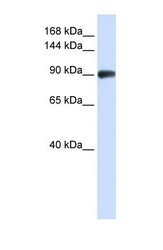 NBP1-58238 - RAD54B
