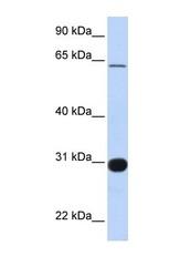 NBP1-58314 - RALGPS1