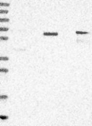 NBP1-84645 - RALGPS2