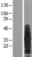 NBL1-15138 - RAMP3 Lysate
