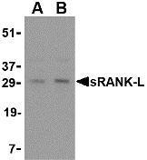 NBP1-76734 - CD254 / RANKL