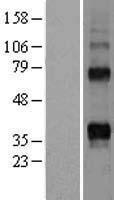 NBL1-17162 - RANKL Lysate